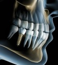 affordable-dental-implants